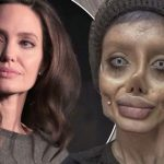 Teen has 50 surgeries to look like Angelina Jolie (Photo)